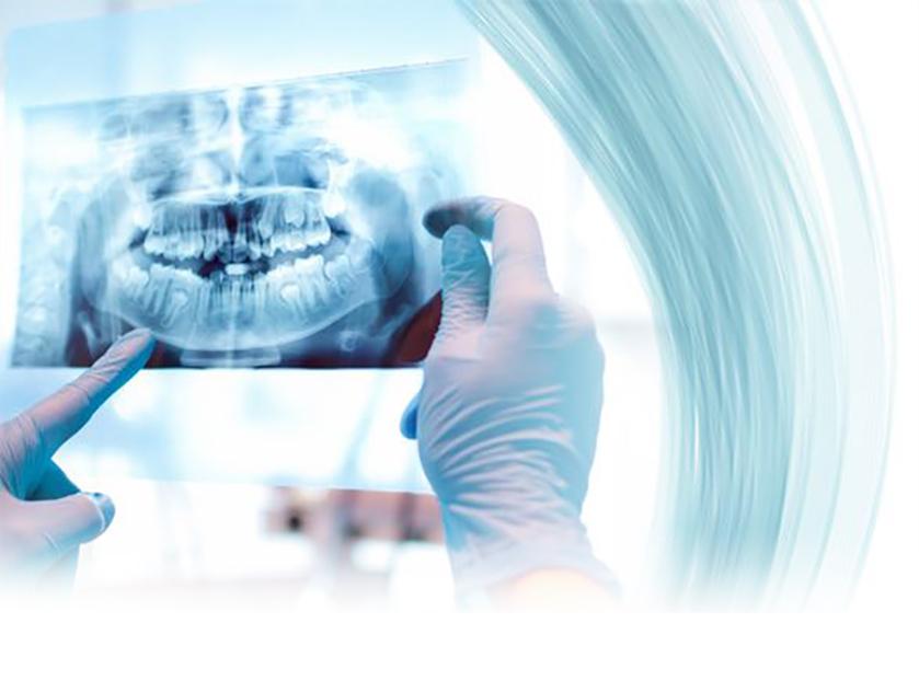 Oral Surgery - Cirugía Oral - Oral laser