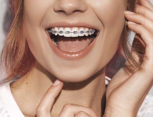 Hablemos de Ortodoncia