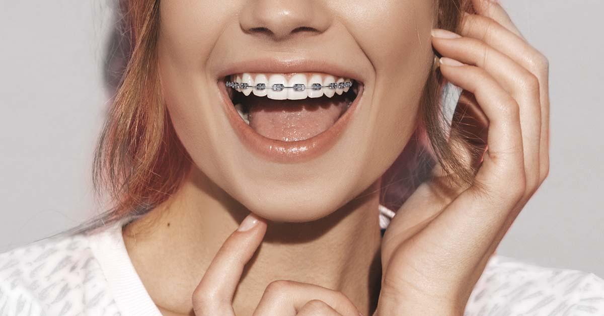 Chica con ortodoncia