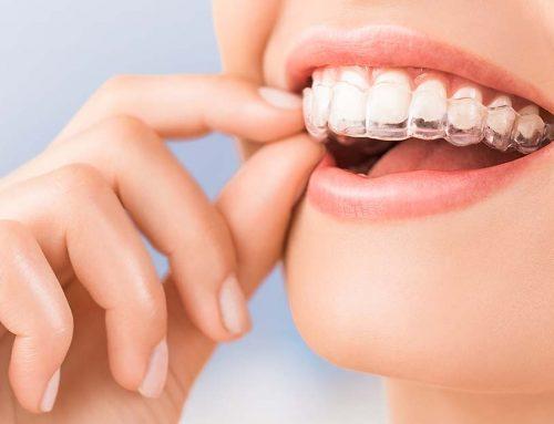 ¿Soy apto para un tratamiento de ortodoncia invisible?